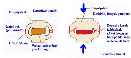 Gerincsérves fájdalom- szegment instabilitás miatt 1