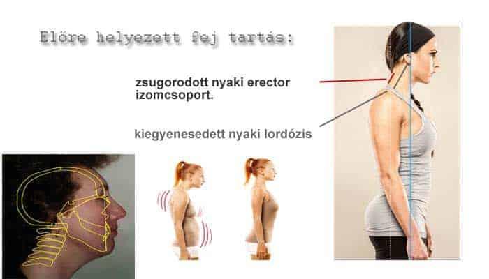 Nyaki gerinc rehabilitáció edzéssel 4