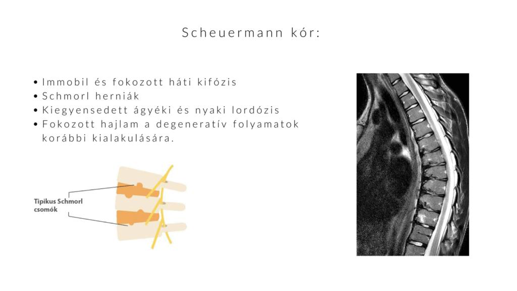 Scheuermann kór